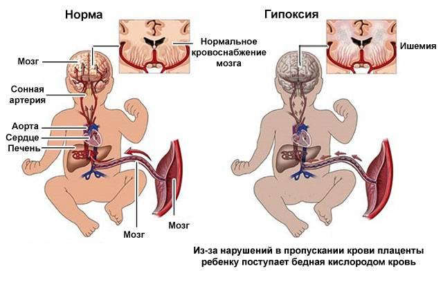 развитие внутриутробной гипоксии плода