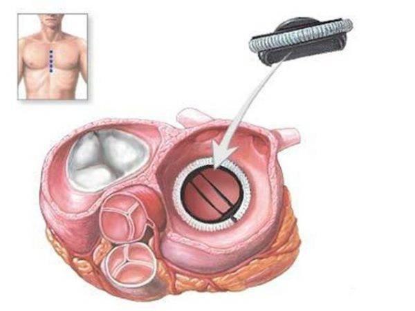 Схема установки протеза клапана