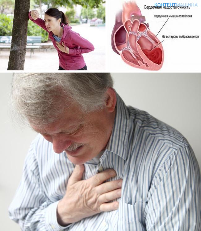 какие лекарства принимать при сердечной недостаточности
