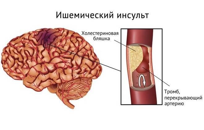 церебральный вариант инфаркта миокарда