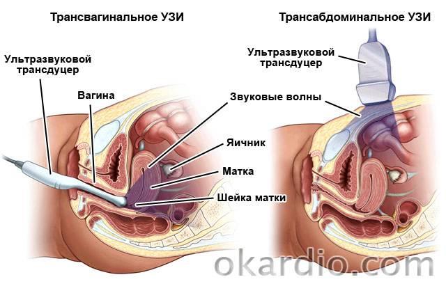 трансвагинальное и трансабдоминальное УЗИ