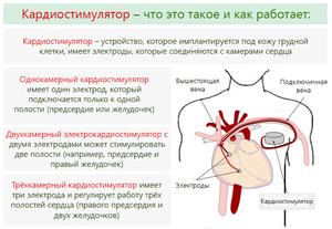 Используется 3 вида кардиостимуляторов