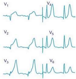 Как узнать был ли инфаркт или нет