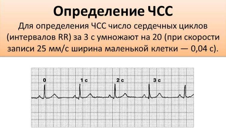Расшифровка кардиограммы сердца ритм синусовый что это