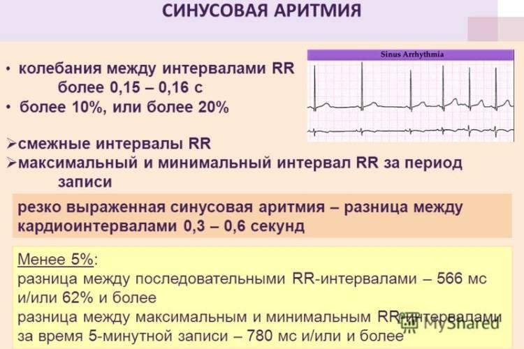 Синусовая аритмия на результате анализа