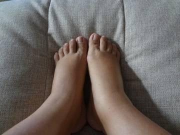При сердечной недостаточности наблюдаются отеки ног
