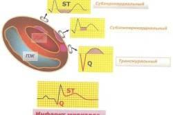 Диаграмма формирования основных ЭКГ-признаков инфаркта миокарда