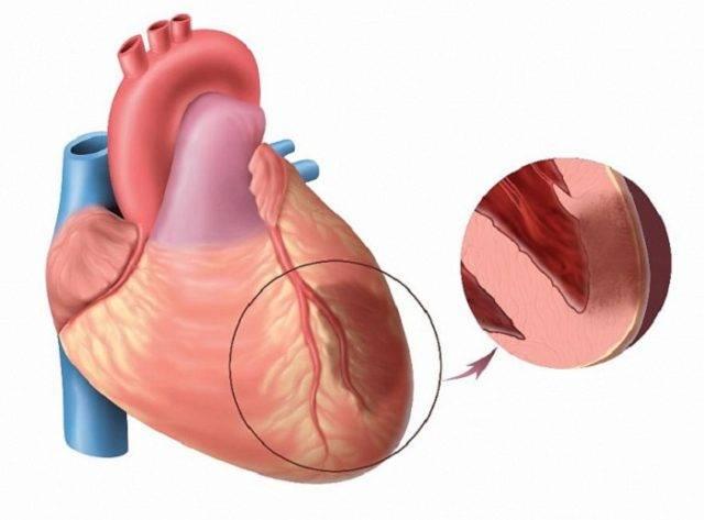 острый крупноочаговый нижний инфаркт