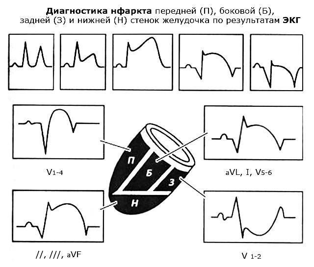 диагностика инфаркта стенок желудочка по результатам ЭКГ