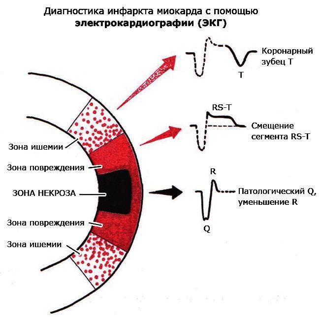 диагностика инфаркта миокарда с помощью электрокардиографии