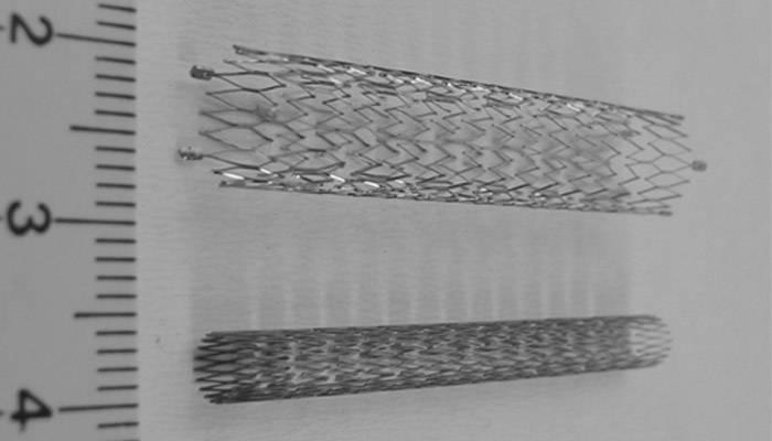 Коронарные стенты для операции