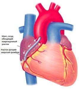 Реабилитация после стентирования сосудов сердца — рекомендации для быстрого восстановления