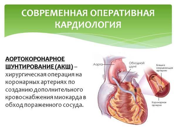 Аортокоронарное шунтирование
