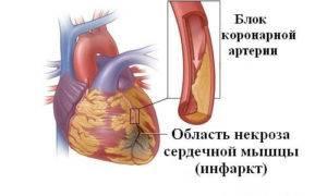 Инфаркт на ногах