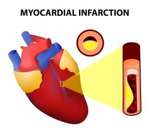 Инфаркт перенесенный на ногах последствия у женщин