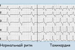 Сердечные ритмы при тахикардии