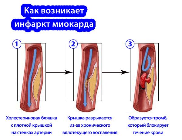 Таблетки при инфаркте и после инфаркта