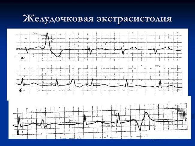 Желудочковая экстрасистолия - это аритмия, возникающая под влиянием нервных импульсов