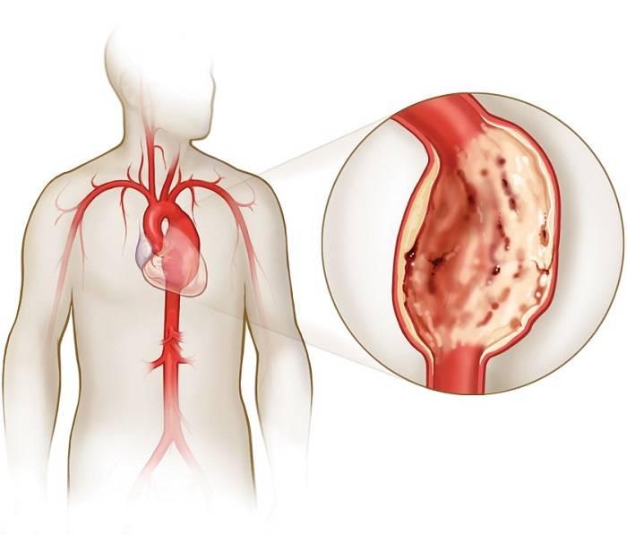 Разрыв аорты (брюшной, сердца, грудной, дуги): причины и симптомы