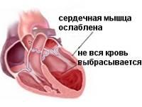 Что такое сердечная недостаточность и как ее диагностируют