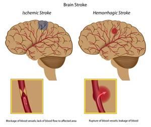 в чем состоит опасность геморрагического инсульта