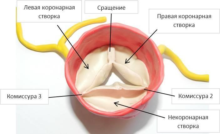 Фиброз створок аортального клапана что это такое — Сердце