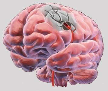 Первые признаки и симптомы инсульта