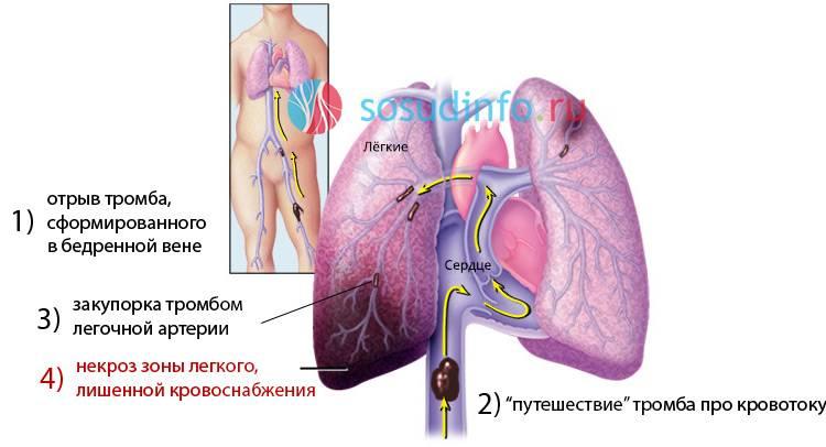 инфаркт с отеком легких прогноз