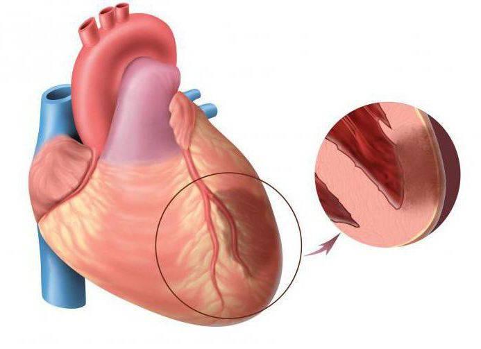 первая медицинская помощь при острой сердечной недостаточности