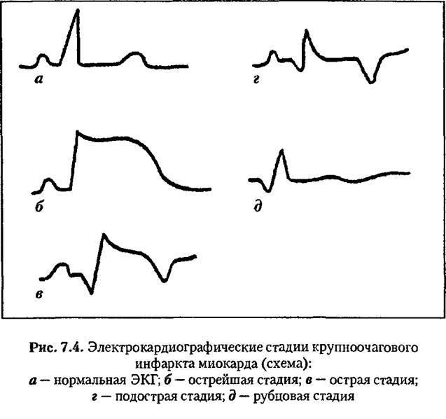 ЭКГ стадий инфаркта миокарда