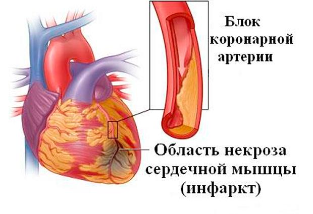 причины возникновения инфаркта у мужчин