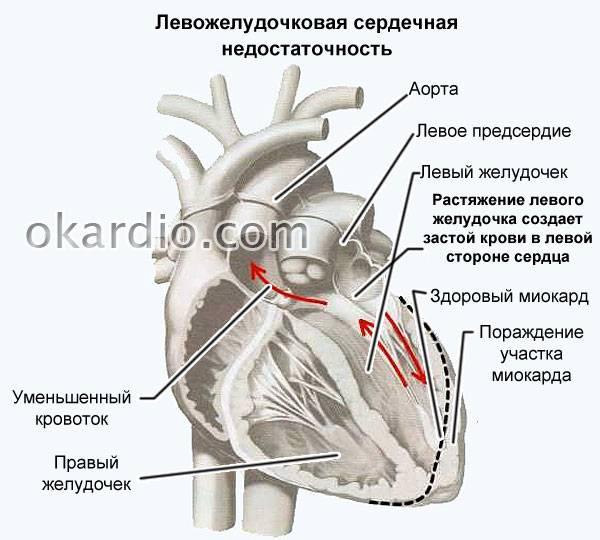 признаки сердечной недостаточности у котов