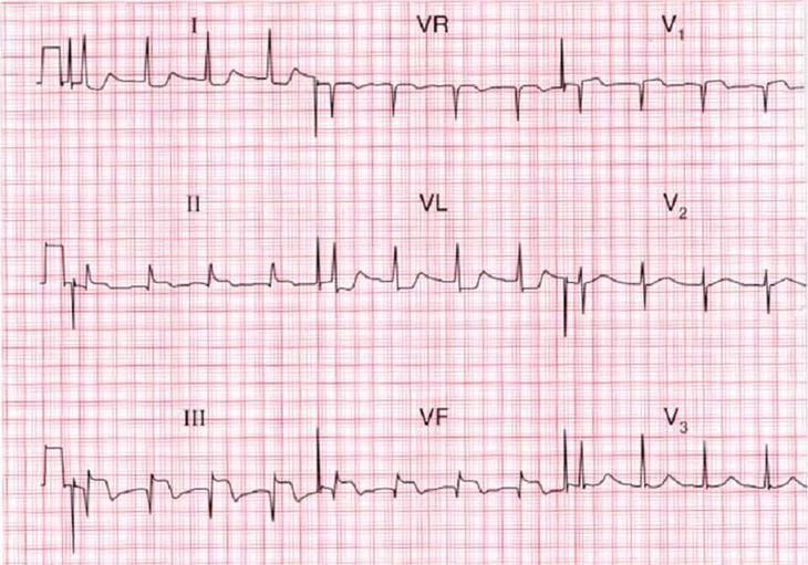 Как инфаркт миокарда диагностируется при экг?