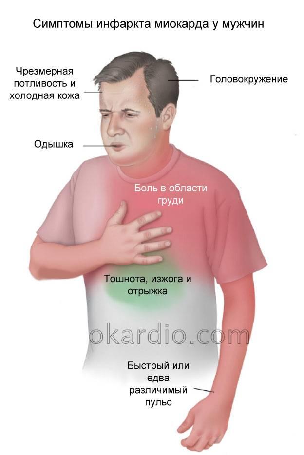 симптомы инфаркта у мужчин