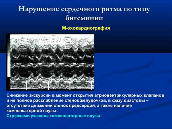 Экстрасистолия по типу бигеминии