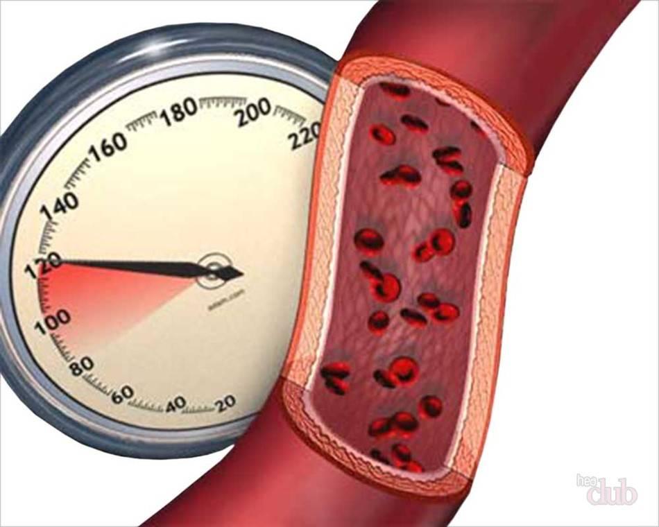 Стойкое повышение давления выше 140/90 мм рт. ст. называют гипертонией