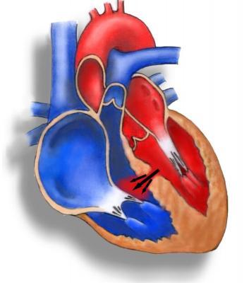 Гипертрофия левого желудочка сердца