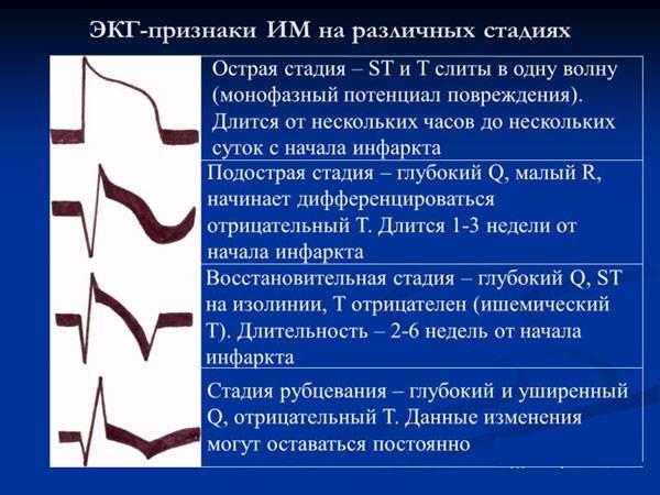 ЭКГ-признаки инфаркта на различных стадиях