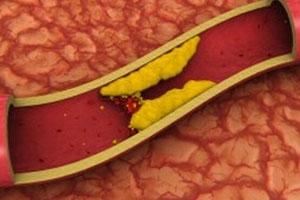 Стеноз брюшной аорты симптомы и лечение