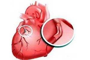 Причины ишемии сердца