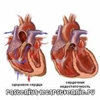 Застойная сердечная недостаточность – симптомы, лечение, причины, народные средства