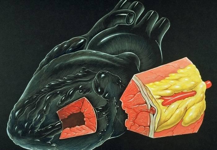 Гипоксия миокарда левого желудочка что это такое симптомы и лечение