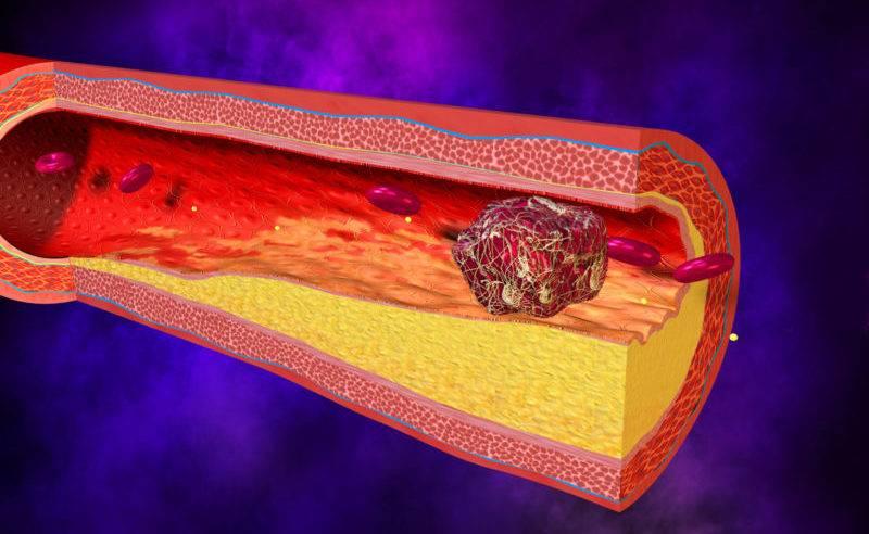 как отрывается кровяной тромб
