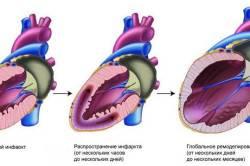 Этапы развития инфаркта