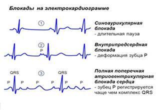 Блокады на кардиограмме
