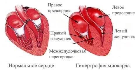 Схема гипертрофии левого желудочка сердца