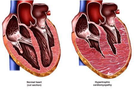 гипертрофия миокарда левого желудочка сердца что это такое