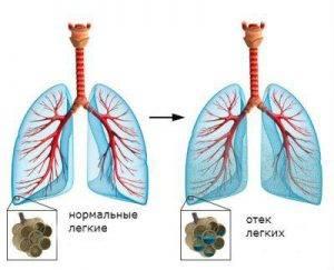Жидкость в легких сердечная недостаточность ⋆ Лечение Сердца
