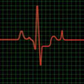 Повышенный пульс 100 ударов в минуту и более при нормальном давлении