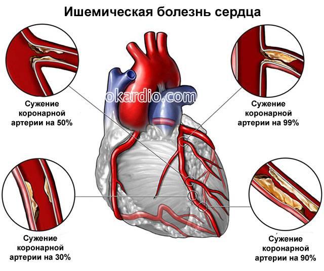Как называется воспаление сердечной мышцы симптомы и лечение
